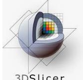 Download 3D Slicer